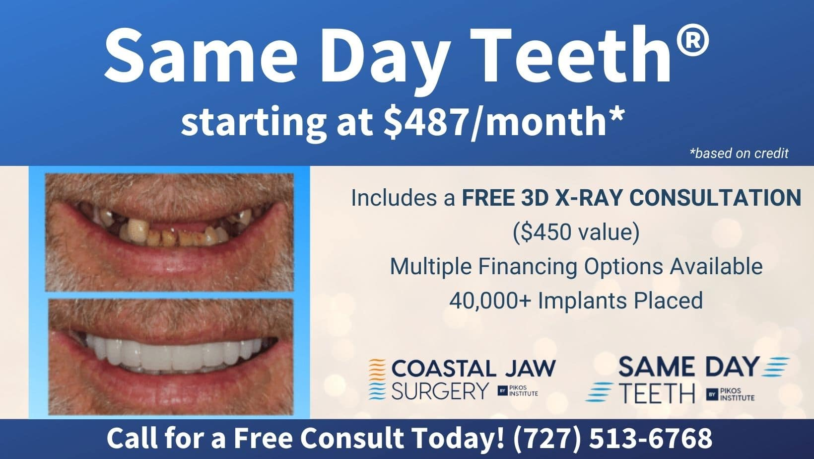 Same Day Teeth Starting at $487 per month